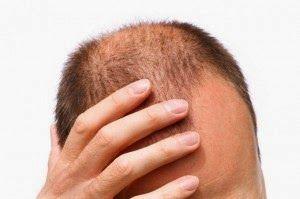 Saç Dökülmesi Nedenleri: Saç Dökülme Nedenleri – Androjenik Alopesi