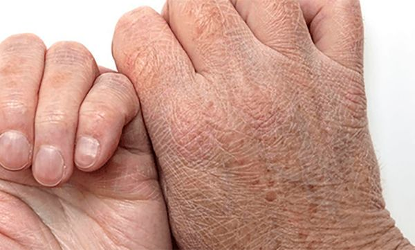 Do You Have Dry Skin? These Are The 4 Diseases To Which You Should Pay Attention - https://healthiestfoodchoice.com/do-you-have-dry-skin-these-are-the-4-diseases-to-which-you-should-pay-attention/