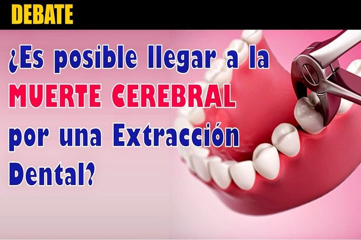 DEBATE: ¿Es posible llegar a la MUERTE CREBRAL por una extracción dental?   Odontología - Ovi Dental