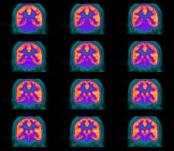 What is a PET? How does a PET scan work?