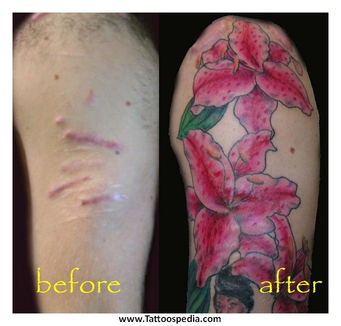 15 best images about tattoos over scars on pinterest for Tattoos to cover surgery scars