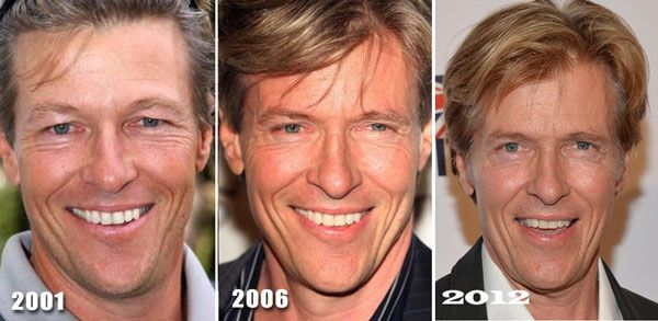 Has Jack Wagner had plastic surgery? All 3 before and after pictures show that he has the same wrinkles, but he doesn't seem to actually change.