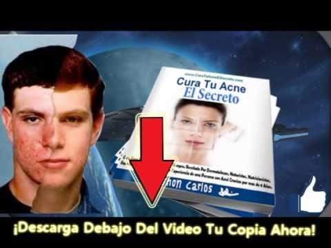 cómo curar las marcas de acné cómo curar el acné naturalmente - http://solucionparaelacne.org/blog/como-curar-las-marcas-de-acne-como-curar-el-acne-naturalmente/