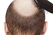 Descoberta faz atividade do couro cabeludo voltar ao normal em 90 dias