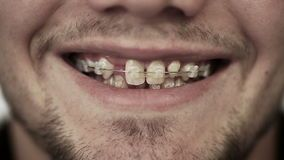 Young man with braces on teeth smiling. stock video footage