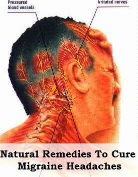 5 Natural Remedies For Migraine Headaches Treatment