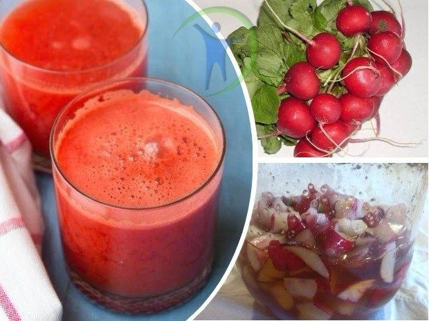 Remedio Natural De Rabano Para La Congestion Nasal Food Fruit Home Remedies
