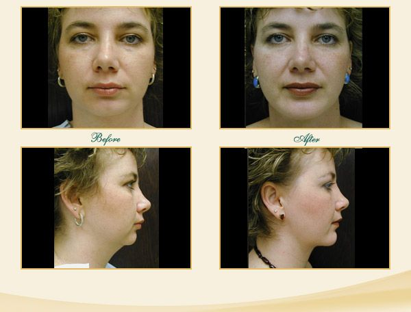 C'est Silicone injections facial contouring