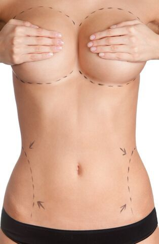 The surgical procedures performed most frequently on women in 2014 were:  Breast Augmentation  Liposuction  Eyelid Surgery  Fat Grafting  Abdominoplasty