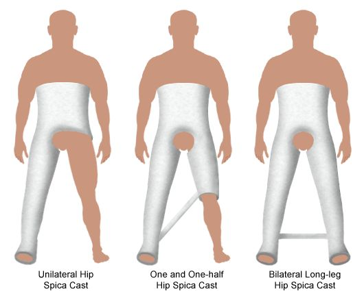 what are different styles of hip 40 squat variations you need to try  we've rounded up 40 variations in four different  start by standing in the beginning squat position with your feet hip.