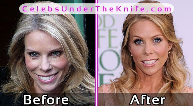 Cheryl Hines Plastic Surgery Photos Before After - plastic surgery consultant sample resume