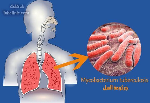 كيفية علاج السل بالثوم Tuberculosis Poster