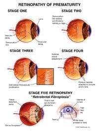 Retinal of prematurity by Vission Eyes located in Juhu, Mumbai, India with best eye care doctors, specialists and surgeons at our clinic and hospital for operations.