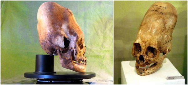 (adsbygoogle = window.adsbygoogle || []).push();   En 1928 fue hallado en la costa sur del Perú un cementerio que albergaba 300 restos de individuos con el cráneo alargado. El descubrimiento fue dirigido por el arqueólogo peruano Julio Tello, y se cree que los cráneos pueden datar...