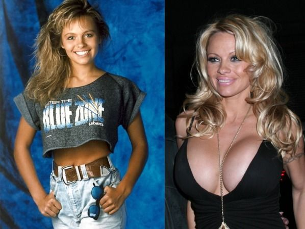 Shocking Celeb Plastic Surgery Transformations