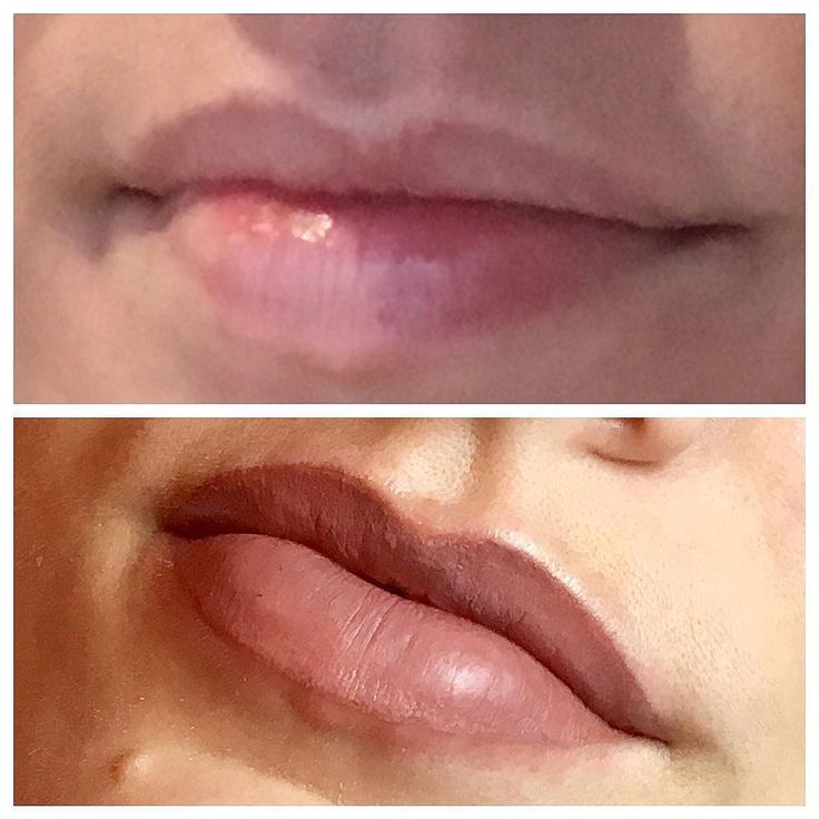 Before and After semi permanent lips! 💗⠀ ⠀ Call, email or message me for a free consultation appointment! Link in bio. ⠀ #microblading #brows #eyebrows #lovemyjob #browsonfleek #beauty #eyeliner #wakeupfeelingbeautiful #nouveau #tattoo #love #3DBrows #sarahcatherinecosmetics #makeup #naturalbrows #lipblush #hdbrows #highdefinitionbrows #lvllashes #lashes #antiageing #hair #skin #stalbans #semipermanentmakeup #naturallashes #facials #beautysalon #perfectbrows