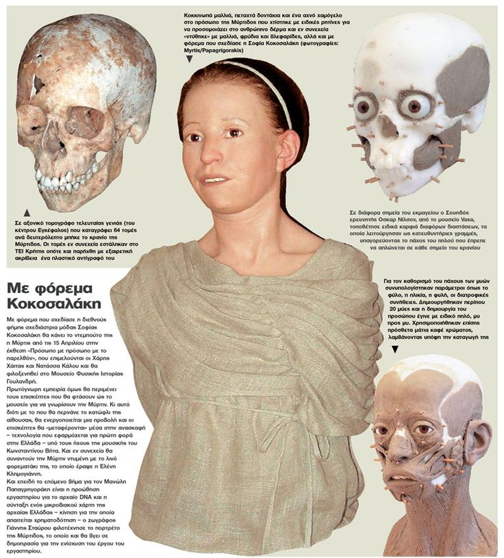 Dienekes' Anthropology Blog: Face of 11-year-old victim of the Great Plague of Athens