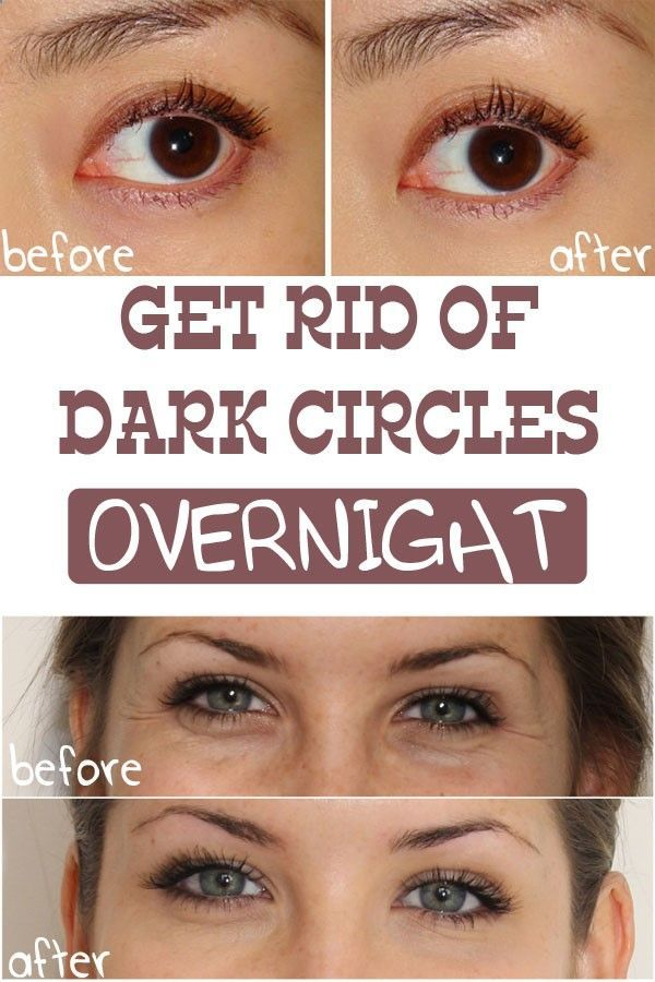a472005e732 How To Get Rid Of Dark Circles Under Eyes Fast Without Makeup ...