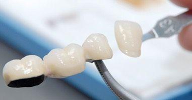 #teeth #identistry #smile #dental #dentist #happy #model #beauty #style #dentistrymyworld #fashion #fitness #zahnarzt #health #frankfurt #composite #whiteteeth #lachen #pictureoftheday #like #implants #cosmeticdentistry #cosmetics #aesthetics #goodfeeling #schöneslachen #look #instalike #followme #gesundheit by zahnarzt_frankfurt
