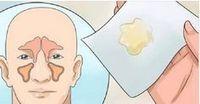 Como eliminar a congestão nasal em poucos minutos sem o uso de medicamentos!   Cura pela Natureza