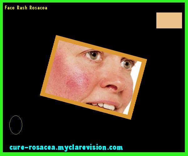 Face Rash Rosacea 192836 - Cure Rosacea