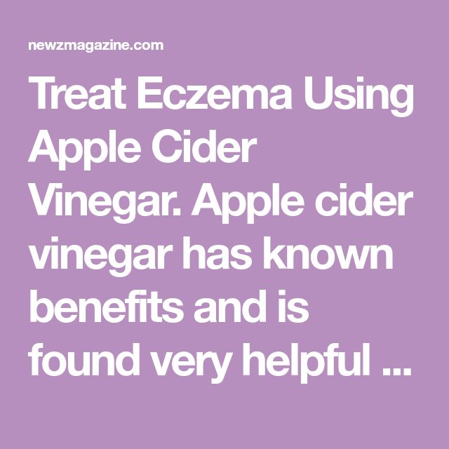 Treat Eczema Using Apple Cider Vinegar. Apple cider vinegar has known benefits and is found very helpful in treating eczema.