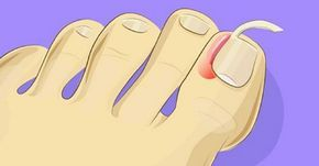 Mira lo fácil que es tratar las uñas encarnadas en casa. Sin tener que recurrir…