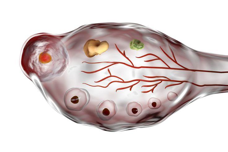 Как лечить поликистоз яичников?