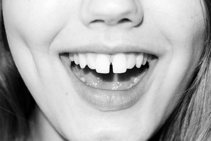 terry richardson: Terry O'Neil, Beautiful Imperfect, Gap Teeth, Richardson Diaries, I M Terry, Richardson Photography, Bi Terry, Beautiful Gap, Terry Richardson