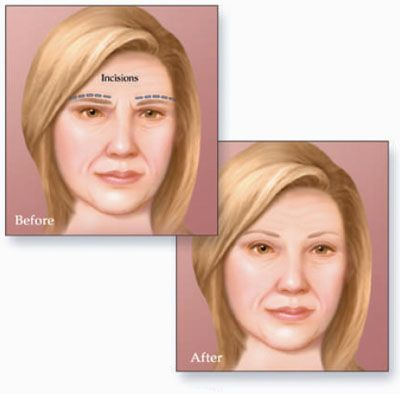 """Also known as forehead lift or browplasty. It is not uncommon for the skin above the eyes to start to droop as one gets older, causing what is often referred to as the hood effect, and this make eyes look tired and the face look old. Also known as a """"Forehead Lift"""", Brow lift surgery is a simple procedure carried out to lift the area directly above the eye,"""