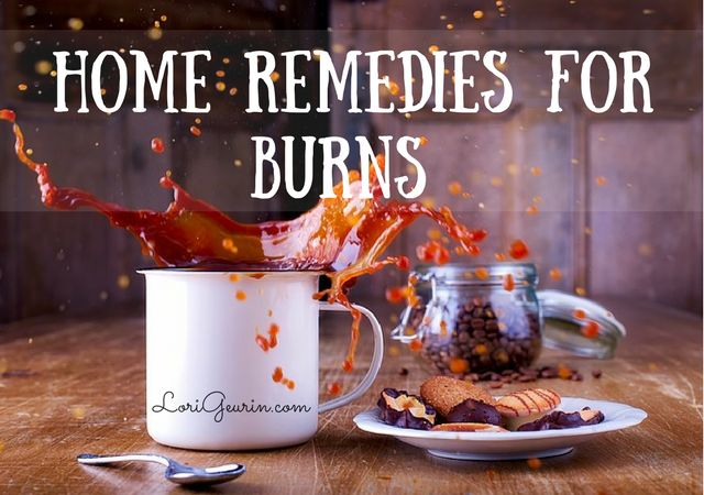 Learn about many effective remedies for treating burns naturally including honey, aloe vera, coconut oil, lavender essential oil and raw potatoes.