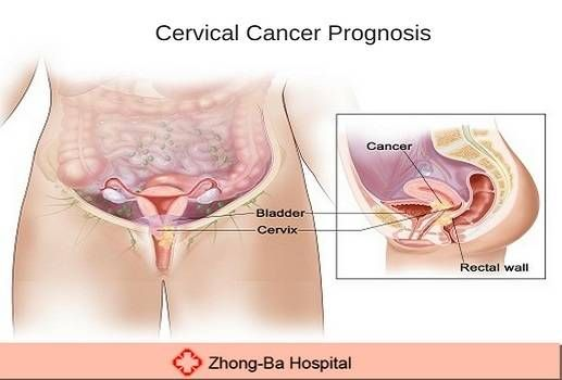 We have Chinese female gynecologists Dr. GOUFEN LUI. She is from China and she have 40 years of experience in #Gynecology disease such as: #Cervical_Cancer_Prognosis. Contact us at +92-313-6368888 or visit our website.