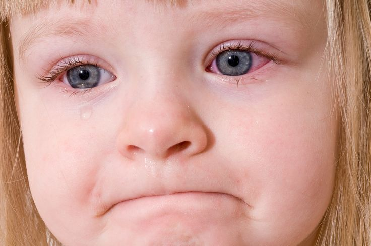 Home remedies for Conjunctivitis or Pink Eye