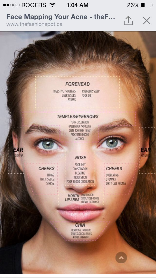What are your face breakouts telling you?! Face mapping on what pimples on your face means.