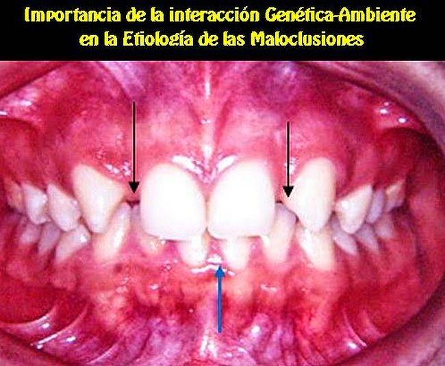 Importancia de la interacción Genética-Ambiente en la Etiología de las Maloclusiones | OVI Dental