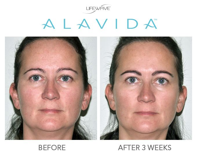 We love seeing how Alavida has helped our members improve the health of their skin  from the inside out and the outside in!