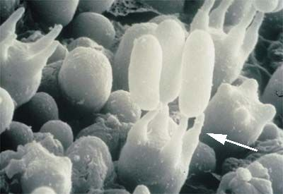 sterigma (pl. sterigmata): small, usually pointed projection that supports a spore (SEM)