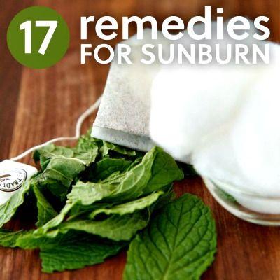 17 Natural Remedies for Sunburn (Includes a Burn Cream Recipes and 16 other sunburn remedies)