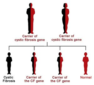 clinical description of cystic fibrosis Description cystic fibrosis is a complex and chronic respiratory disease that requires both the art and science of nursing to care for both the patient and family.