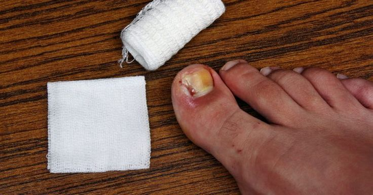 Soften the skin around your toenail with olive oil and gently push it away from the nail with a cotton bud. Wet a cotton swab with an antiseptic sol. or dental floss and place it under the ingrown edge of the nail. Soak your foot in a sol. of warm water and tinctures of St John's wort, calendula for about half an hour. Apply tea-tree oil and/or neem oil to the affected area. Ingrown toenails are really common, but that doesn't take away from the pai