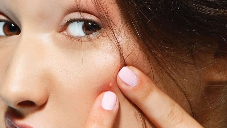 4. You should be healing zits with tea tree oil.