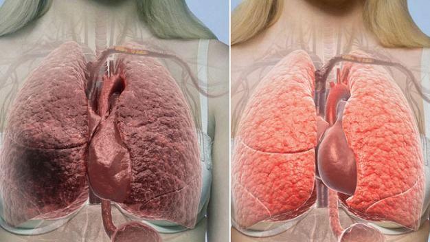 Tupakointi aiheuttaa valtaosan keuhkosyöpätapauksista. Kuvassa havainnollistus siitä, miltä tupakoitsijan ja tupakoimattoman henkilön keuhkot voivat näyttää.