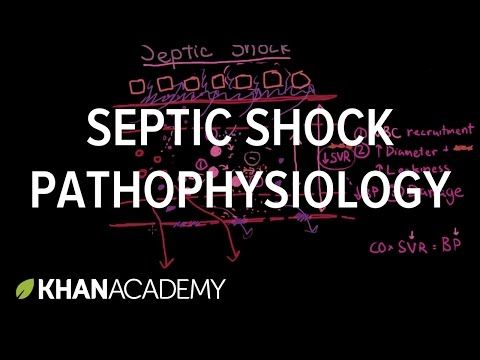 Septic shock - pathophysiology and symptoms - YouTube