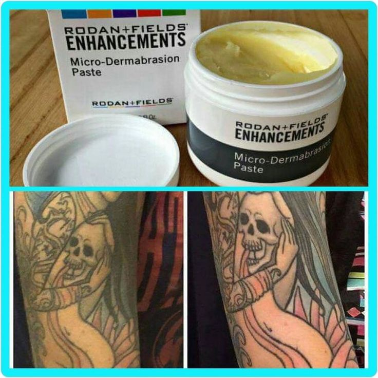 Give you tattoos new life with Rodan & Fields