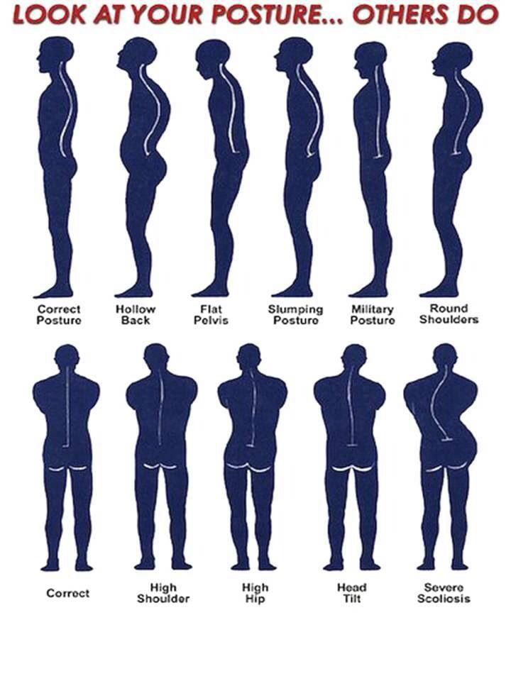 Posture--Chiropractic #chiropractic #posture