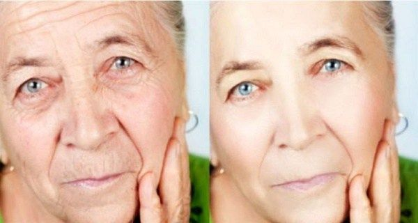 The facial skin is very sensitive and it is exposed to many external factors that may damage it. Some of the factors aresun exposure,environmental pollution, health status and even time. Therefore,