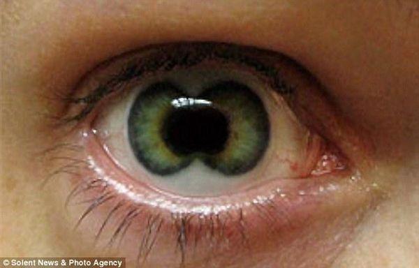 Double Iris Eye Contacts