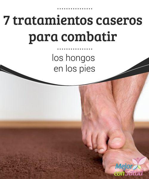 7 tratamientos caseros para combatir los hongos en los pies Los pies son un blanco perfecto para el desarrollo de infecciones por hongos, en especial cuando la persona no los seca bien después de la ducha o utiliza un calzado que permite mantener un ambiente húmedo.