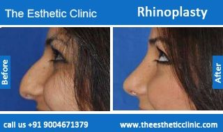 Rhinoplasty Surgery,nose job, nasal refinement surgery Before After Photos in Mumbai, India