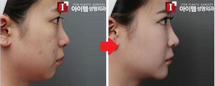 Silicone injections facial contouring